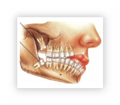 Las muelas del juicio no pueden abrir la boca