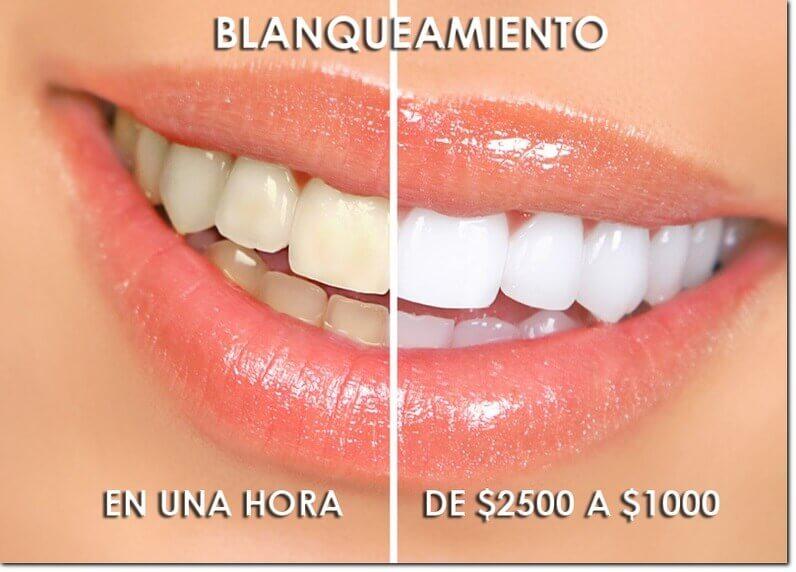 dentista en puebla