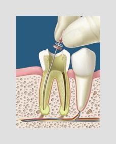 endodoncistas en puebla