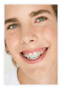 ortodoncia puebla