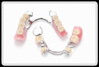 piezas dentales en puebla